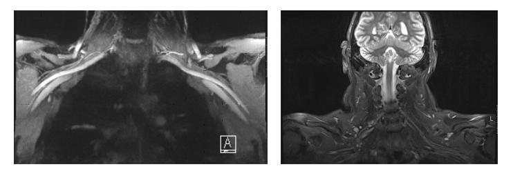 MRI להדמיית עצבים פריפריים