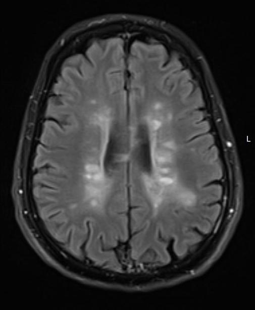 MRI מוח מחלת טרשת נפוצה