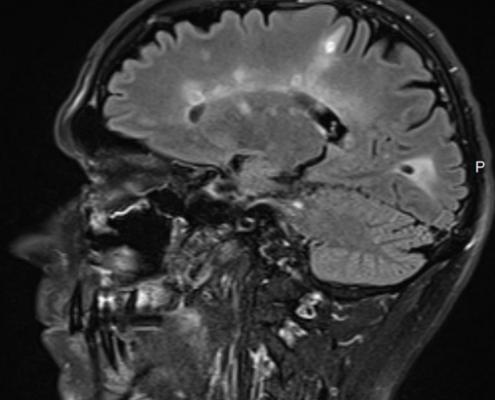 הדמיית MRI במחלת טרשת נפוצה