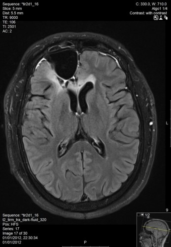 MRI ראש