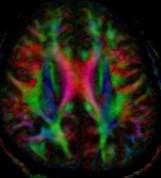 מכון MRI