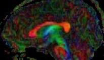 בדיקת MRI בצבעים