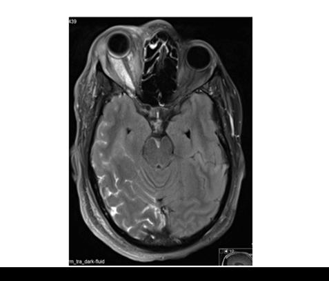 בדיקת MRI בילד עם אפילפסיה ומחלת טוברוס סקלרוזיס