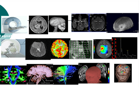 תוצאות בדיקת MRI פרטי