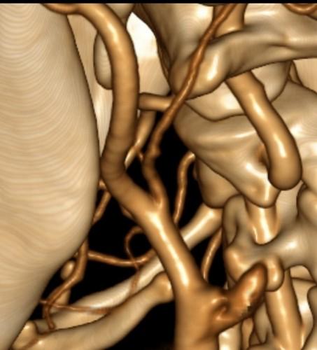 ct מוח - בדיקת CT