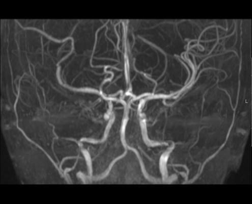 MRI אנגיוגרפיה