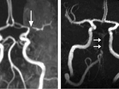 בדיקת MRA של עורקי המדגימה הצרויות בעורקי המוח