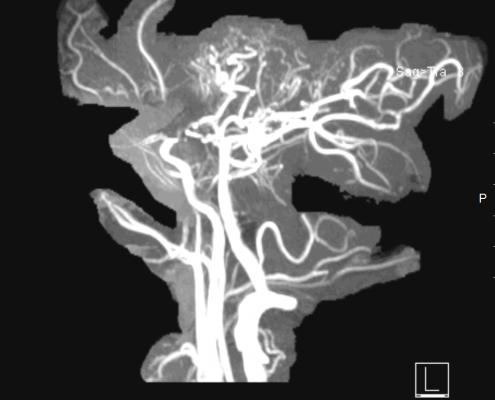 תמונת ה MRA לאחר שחזור תלת מימדי