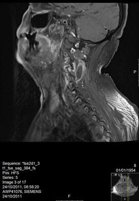 בדיקת MRI של עמוד שדרה צווארי