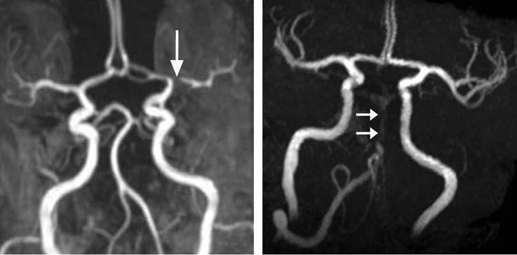 בדיקת MRA מוח המראה חסימות בכלי דם.