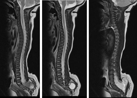 בדיקת MRI עמוד שדרה לילדים