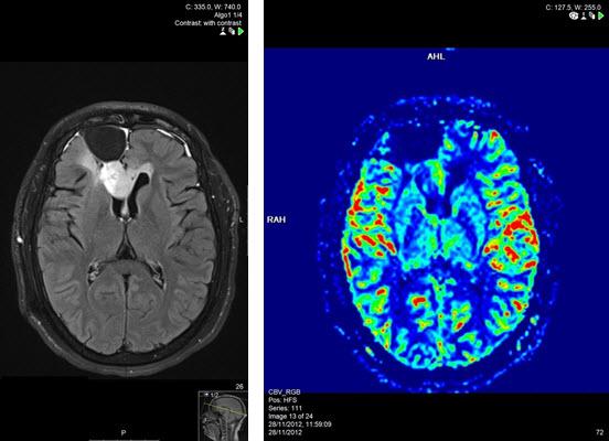 חזרת גידול במיטת הניתוח ב MRI מוח כולל פרפוזיה מוחית.
