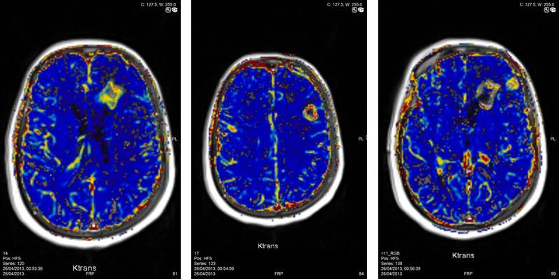 בדיקת MRI מוח כולל פרפוזיה מוחית להדגמת גידולי מוח