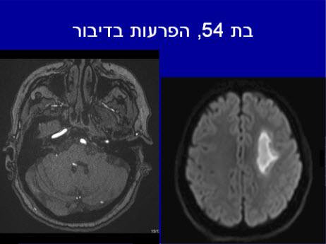 בדיקת MRI המדגימה אוטם מוחי חד
