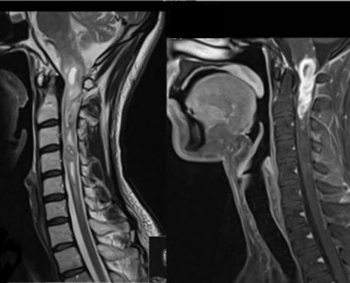 בדיקת MRI המדגימה תהליך בחוט הצווארי של נער בן 20