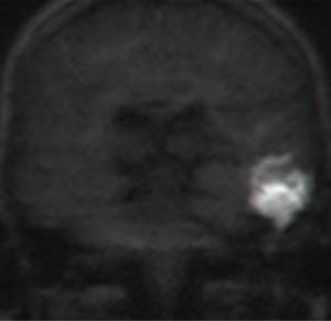 בדיקת MRI עם דיפוזיה