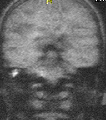 MRI כולסטאטומה