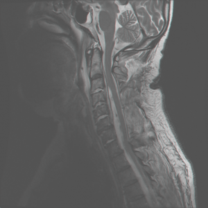 limb weakness mri test spine