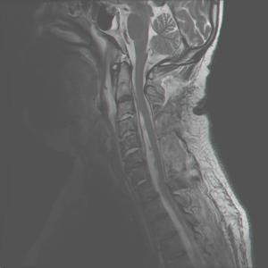 limb weakness mri test spine