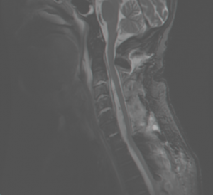 spinal mri test of 60 year old woman