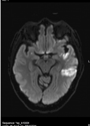 mri test of 59 year old