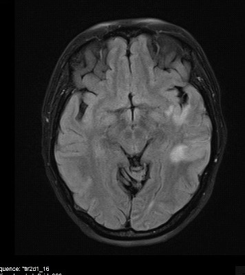 MRI קריש חוסם