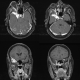 mri and ct scan 2
