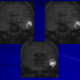 mri ears cholesteatoma 2