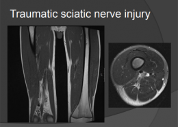 mri test shows Traumatic sciatic nerve injury