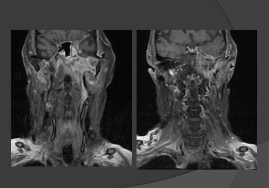 neck tumor showing on mri